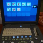 Sonoscape S2 portable ultrasound machine for sale
